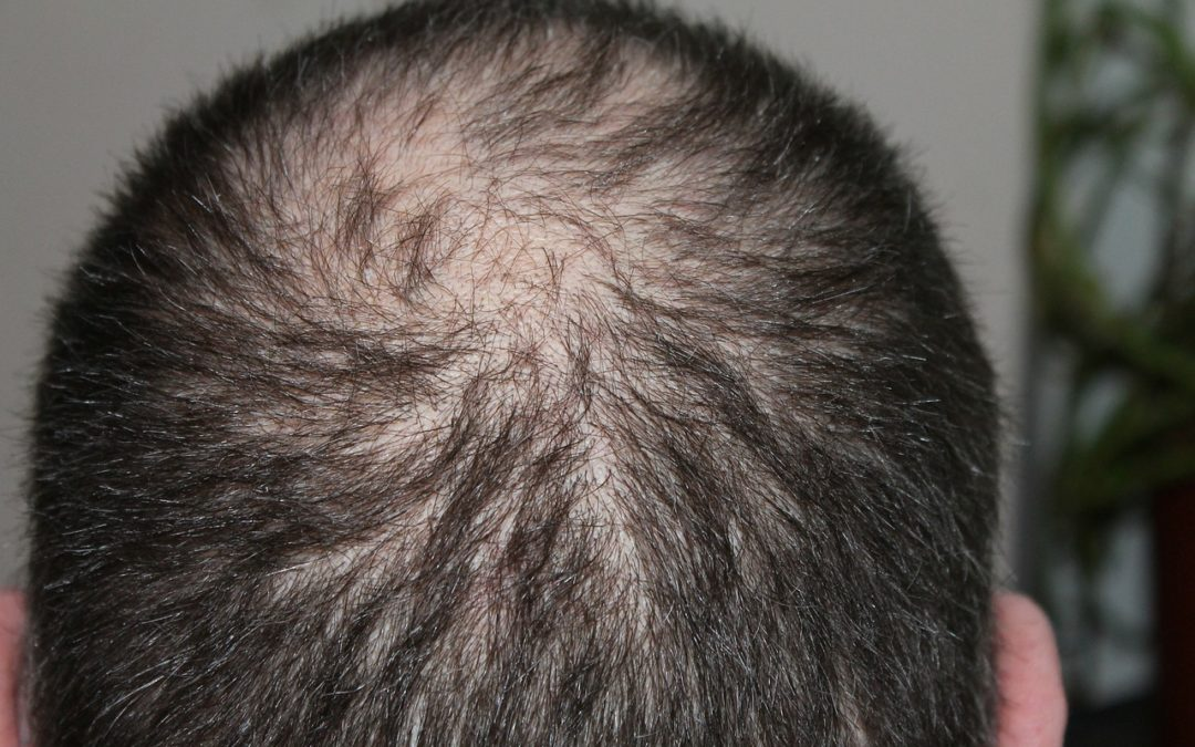 Hair Loss in Women and Men