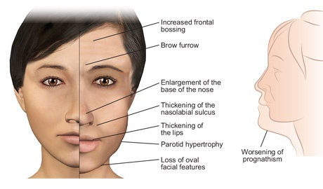 acromegaly_page_facial_features