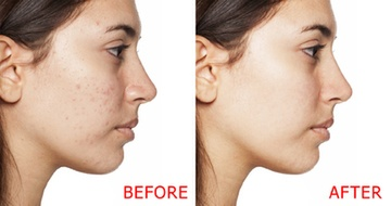 Microneedling with PRP Before & After