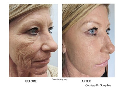 Facial Rejuvenation BEFORE & AFTER